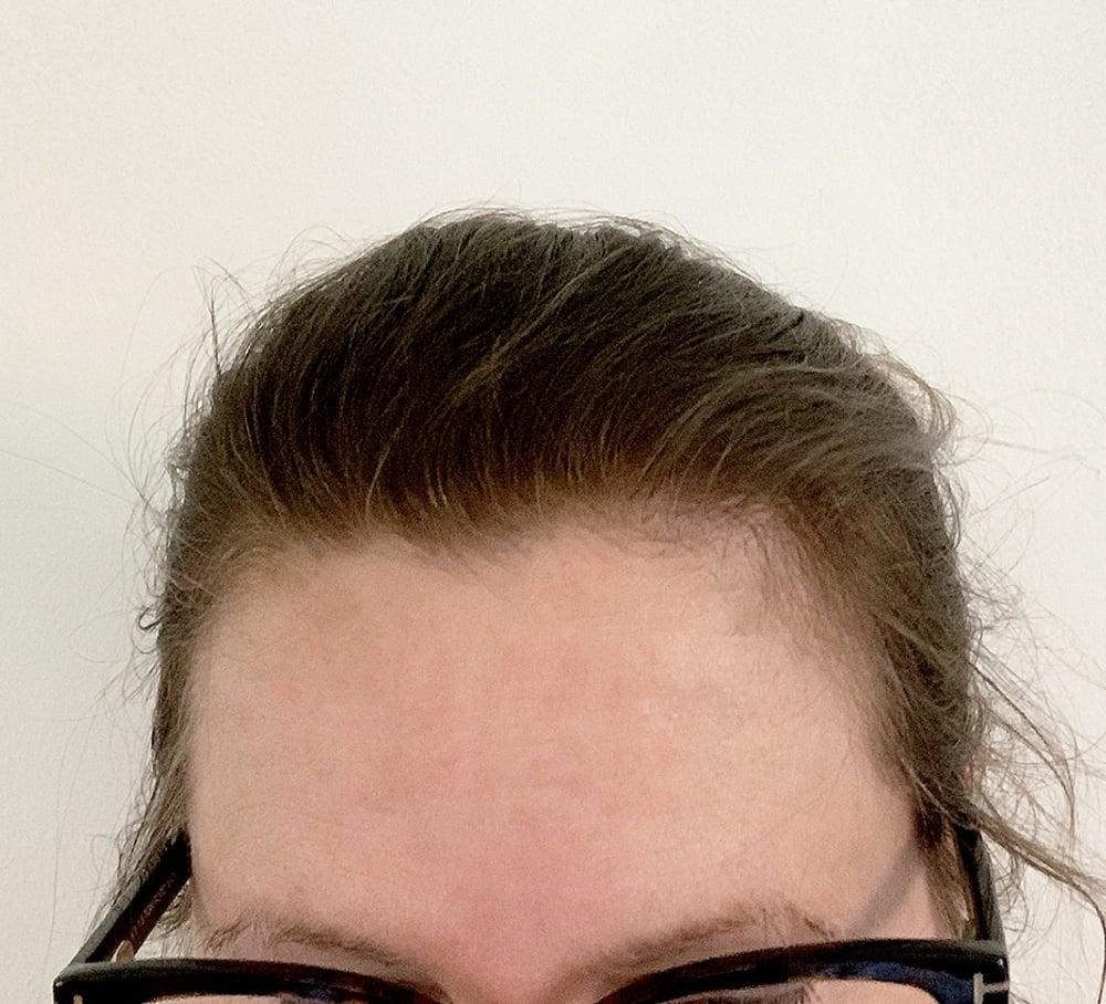hair filler